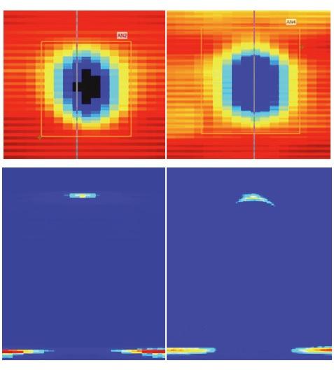 Fázisvezérelt Mapping segíti az ultrahangos hibakeresést